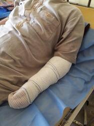 """منظمة دولية تعلن حدوث حالة """"بتر"""" اثناء التعذيب في سجن بالعاصمة بغداد"""