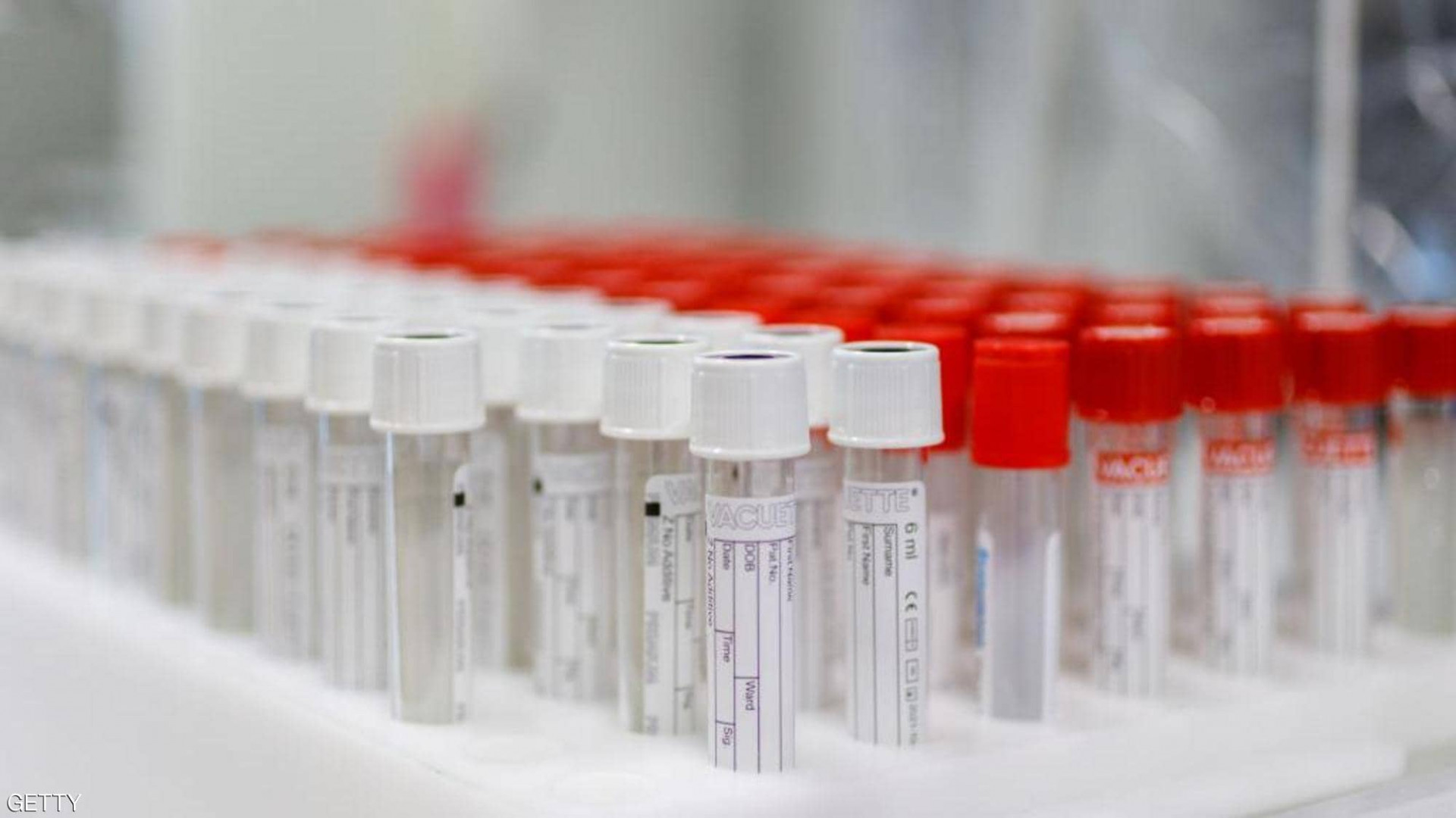 Russian to start Coronavirus vaccination in October
