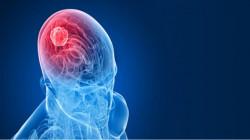 British Woman stayed awake during 8-hour brain surgery