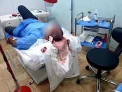 صور .. السلطات تغلق مركزا لزراعة الشعر في احد أرقى المناطق ببغداد وتعتقل صاحبه