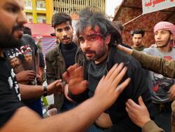 صور .. تعرض ناشط معروف بالاحتجاجات لعدة طعنات في بغداد و وزير الصدر يتوعد