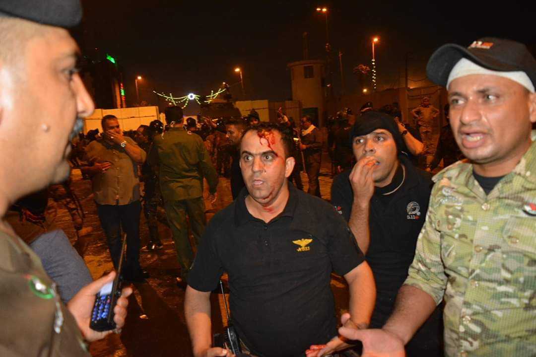 Another side of Karbala demonstrations.. Scenes of dozens of wounded security forces