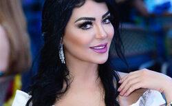 """بالصور: طبيبة أسنان تفوز بلقب ملكة جمال إيران """"العالم"""" 2019"""